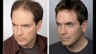 Total hair regrowth | How to Regrow Your Hair | Stop Hair Loss And Regrow It The Natural Way